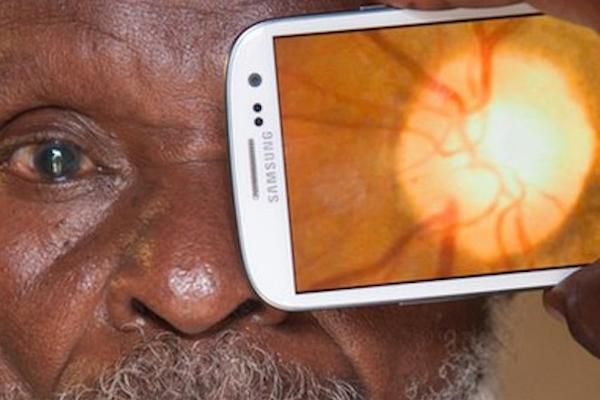 Waspadai Gadget Anda Mempengaruhi Kesehatan Mata
