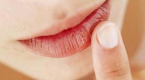 penyebab bibir pecah pecah