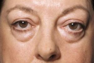 Penyebab Kantung Mata dan Cara Penanganannya